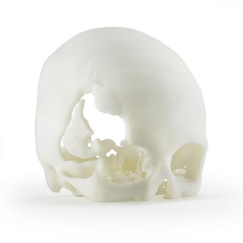 Stampa 3D di teschio con frattura dell'osso - materiale ABS
