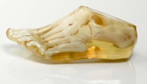 Modello del piede realizzato con stampante 3D PolyJet in multi materiale