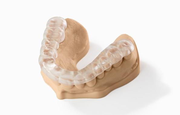 modello 3D dentale con stampante 3d stereolitografia laser